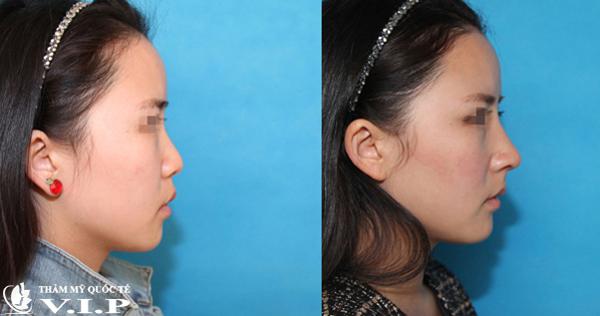 ảnh trước sau nâng mũi Filler