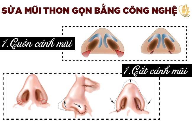 Sửa mũi thon gọn bằng cách nào