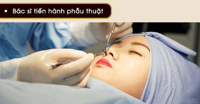 phẫu thuật hình ảnh cắt cánh mũi tại VIP