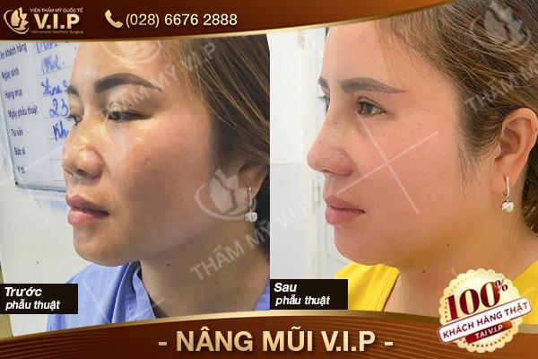 khách hàng nâng mũi sụn surgiform tại VIP