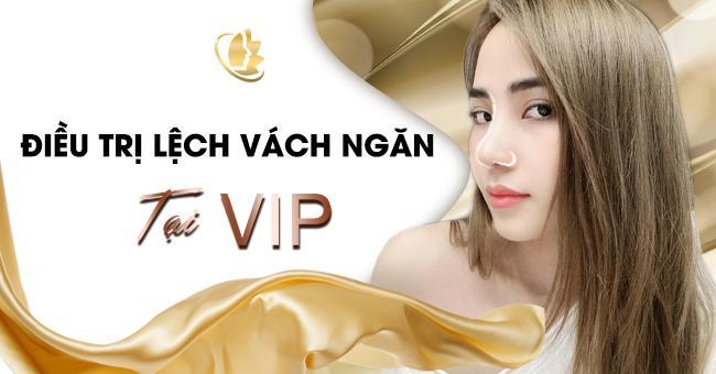 điều trị lệch vách ngăn mũi tại VIP
