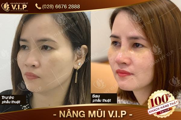 khách hàng nâng mũi bọc sụn tại VIP