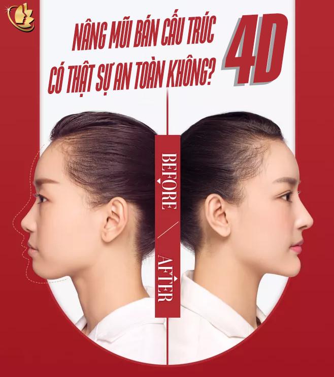 tham khảo nâng mũi bán cấu trúc 4D là gì an toàn không