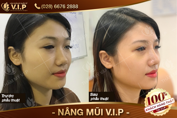 hình ảnh khách hàng nâng mũi S line