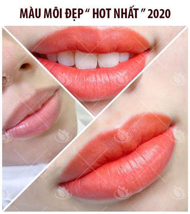 chỉnh hình môi