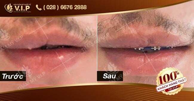khách hàng thu mỏng môi tại vip