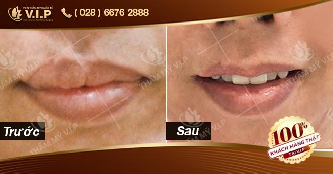 hình ảnh khách hàng thu mỏng môi tại VIP