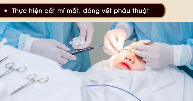 tiến hành cắt mí mắt