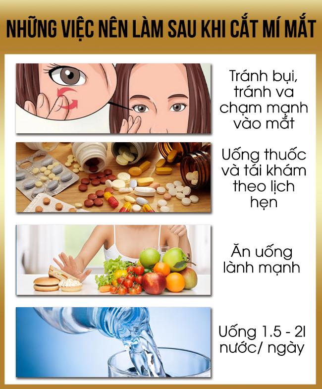 Những việc nên làm sau khi cắt mí mắt nên ăn gì