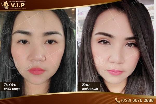 Hình ảnh khách hàng trước và sau cắt mí