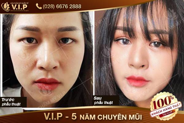 hình ảnh khách hàng cắt mí mắt tại VIP