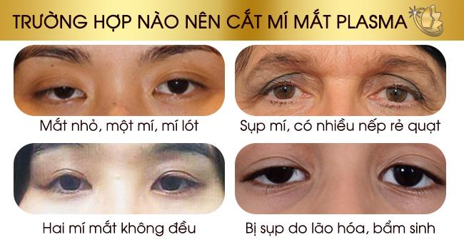 Trường hợp nên cắt mí mắt plasma