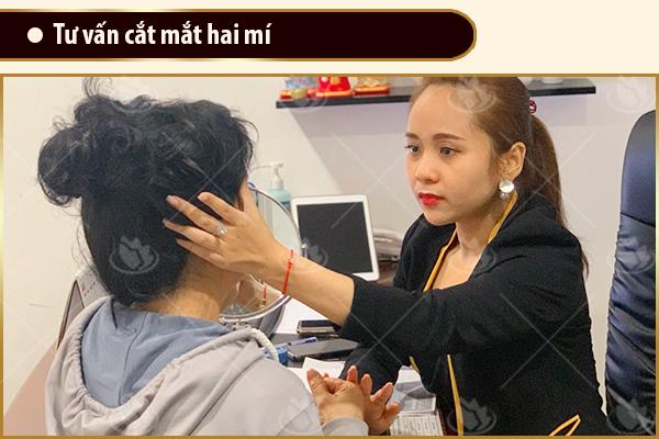 tư vấn cắt mí mắt