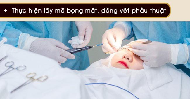 phẫu thuật thẩm mỹ bỏ quầng thâm mắt