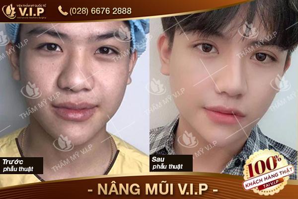 hình ảnhkhách hàng cắt mí mắt giữ được bao lâu tại VIP