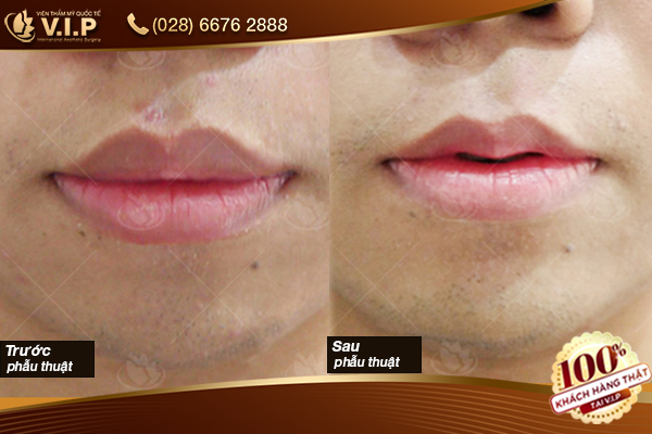 hình ảnh khách tiêm filler môi tại VIP