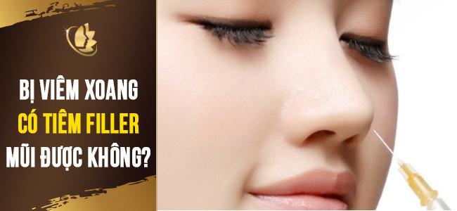 viêm xoang có nên tiêm filler mũi không
