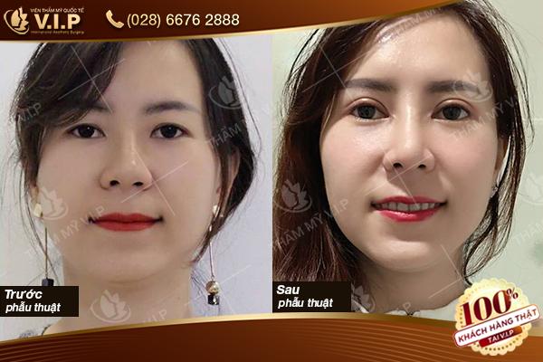 Hình ảnh khách hàng cắt mắt hai mí tại V.I.P