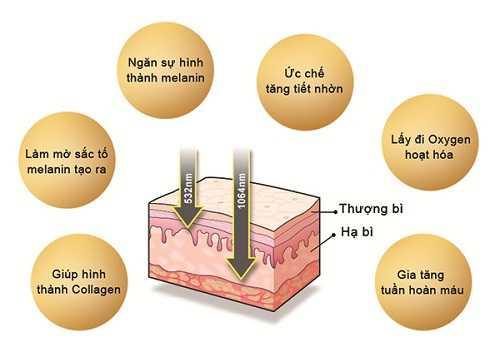 ưu điểm của công nghệ laser toning