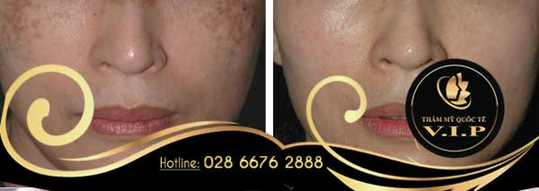 Trị nám bằng Laser Toning có an toàn cho làn da