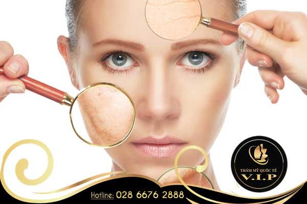 Trị nám bằng Laser Toning có an toàn cho làn da?