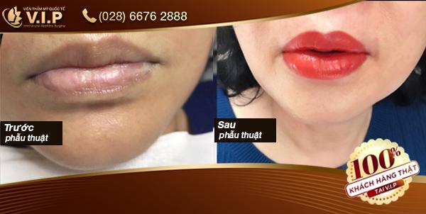 Hình ảnh khách hàng đã phun xăm môi tại VIP