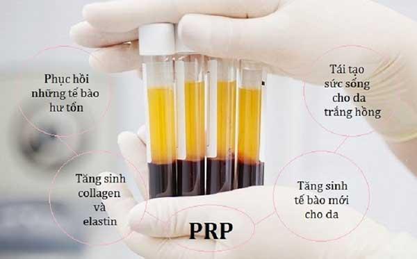 trẻ hóa da với công nghệ PRP