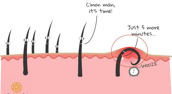 4 tác hại của việc tẩy lông tại nhà