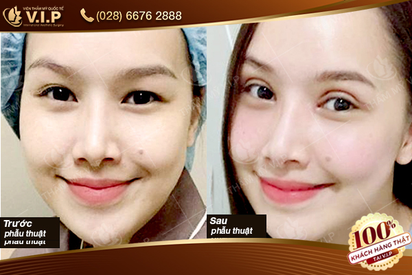 Các tiểu phẫu giúp gương mặt phái đẹp trở nên xinh đẹp