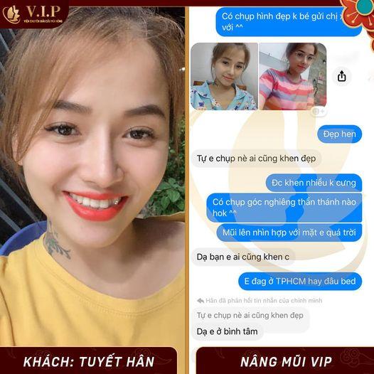 review khách sửa mũi đẹp nhất Sài Gòn