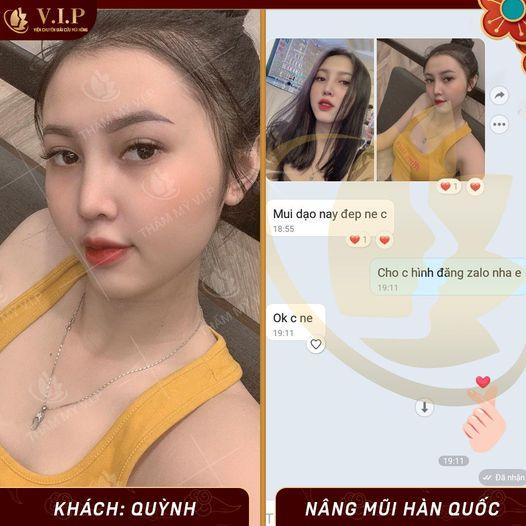 đánh giá sửa mũi đẹp nhất Sài Gòn
