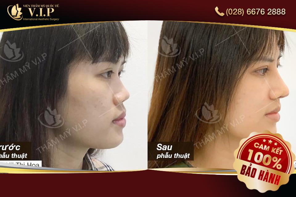 hình ảnh cắt cánh mũi tại VIP của khách