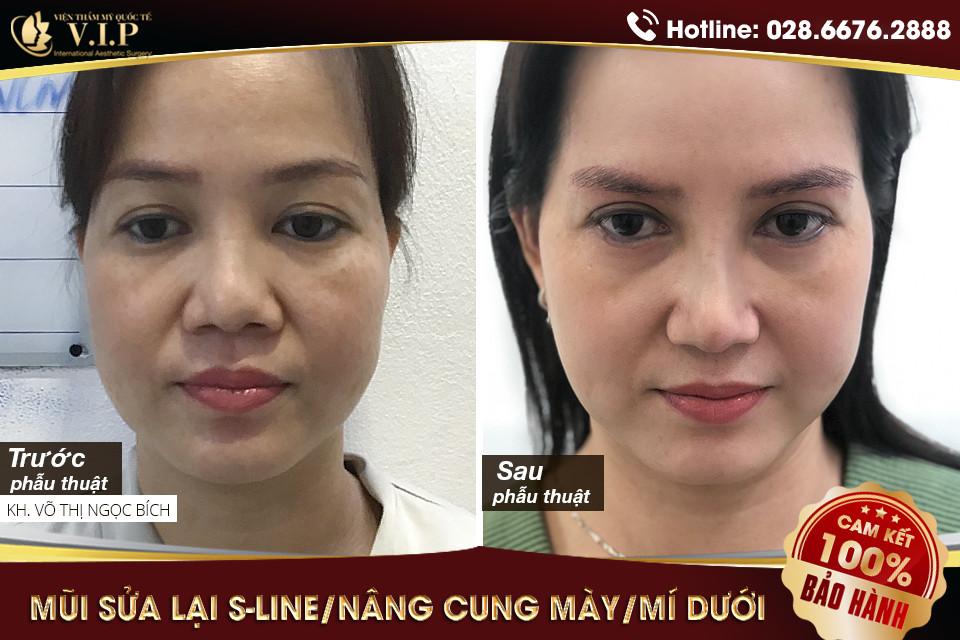 khách hàng bác sĩ lấy mỡ mắt tốt ở TPHCM