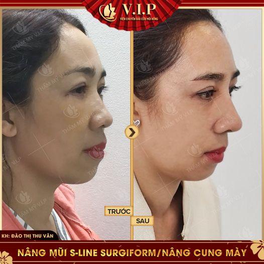 ảnh đẹp sửa mũi đẹp nhất Sài Gòn