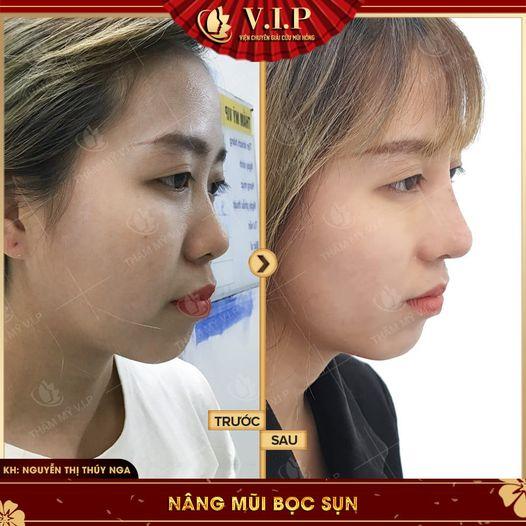 hình ảnh sửa mũi đẹp nhất Sài Gòn