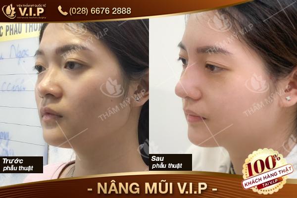 khách nâng mũi sụn tai ở đâu đẹp VIP