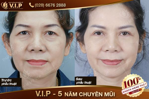 Hình ảnh khách hàng xóa bọng mắt rãnh cười tại VIP