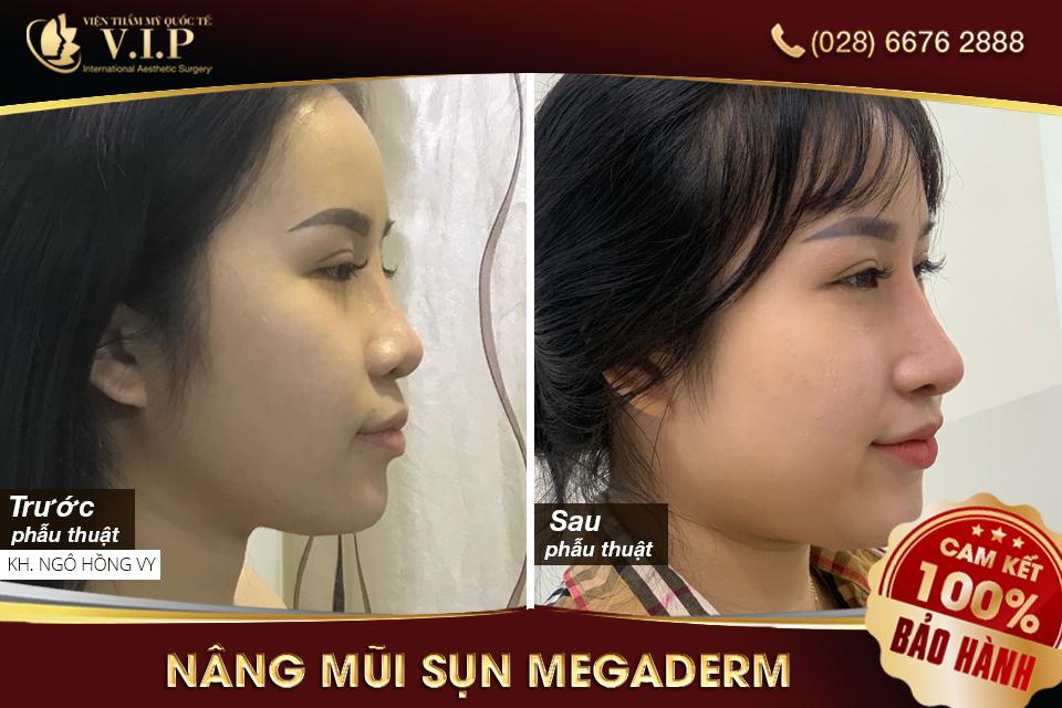 khách hàng nâng mũi megaderm xinh đẹp