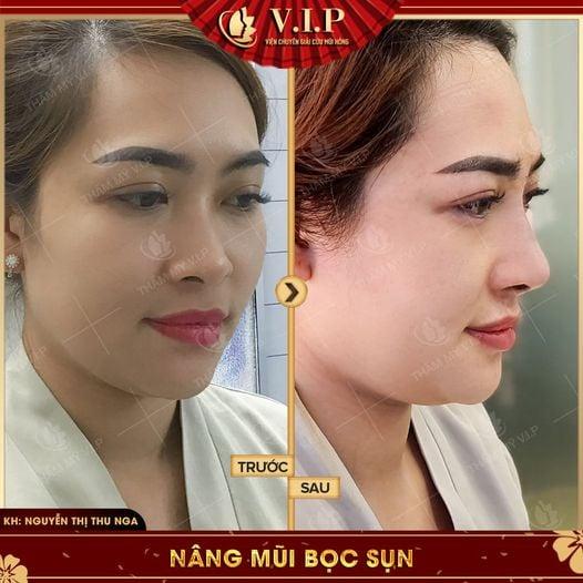 khách đẹp nâng mũi ở đâu đẹp nhất Sài Gòn