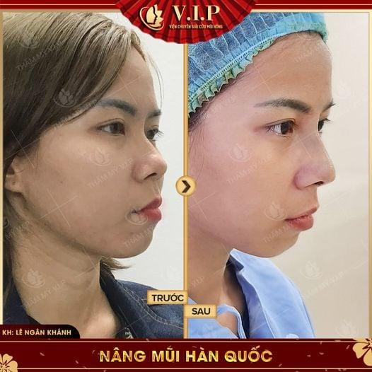hình ảnh nâng mũi ở đâu đẹp nhất Sài Gòn