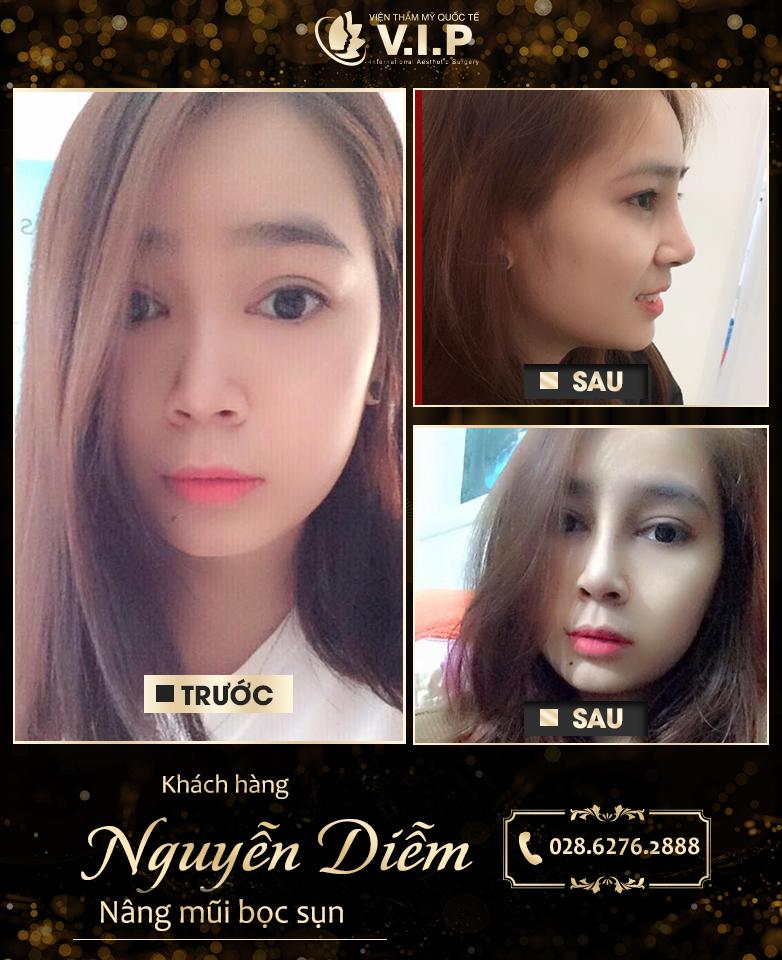 Hình ảnh khách hàng nâng mũi tại VIP - mũi đẹp đến từng milimet