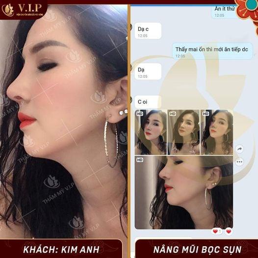 đánh giá nâng mũi ở đâu đẹp nhất Sài Gòn