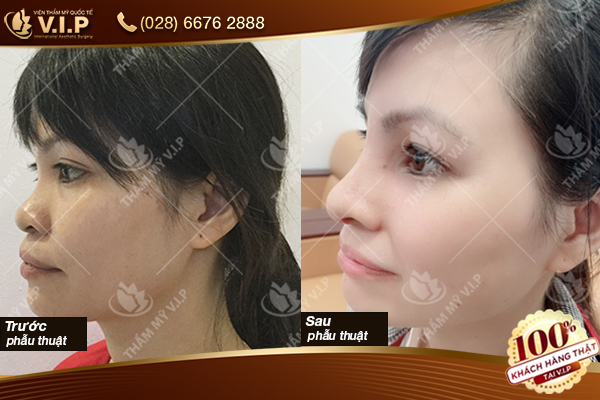 thu gọn cánh mũi không phẫu thuật