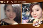 Hình ảnh khách hàng Nguyễn Mơ sau nâng mũi tại VIP