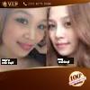 Hình ảnh sau nâng mũi bọc sụn tại V.I.P của Hồng Lý