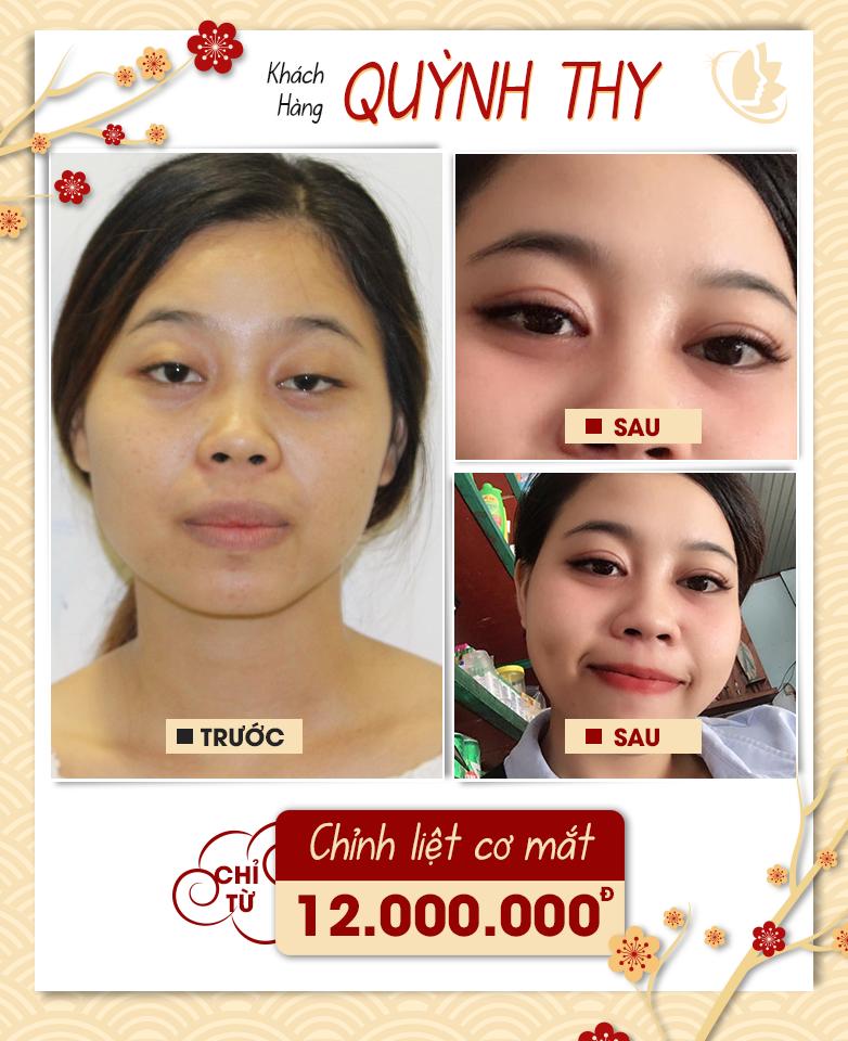 Hình ảnh khách hàng phẫu thuật mắt tại VIP
