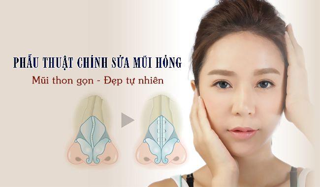 Nâng mũi bao lâu thì sửa lại được? Vienthammyvip