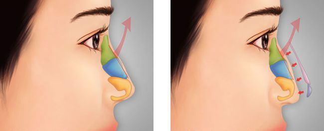 quy trình chỉnh sửa mũi hỏng