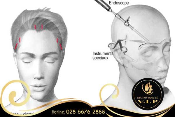 phẫu thuật căng da trán nội soi