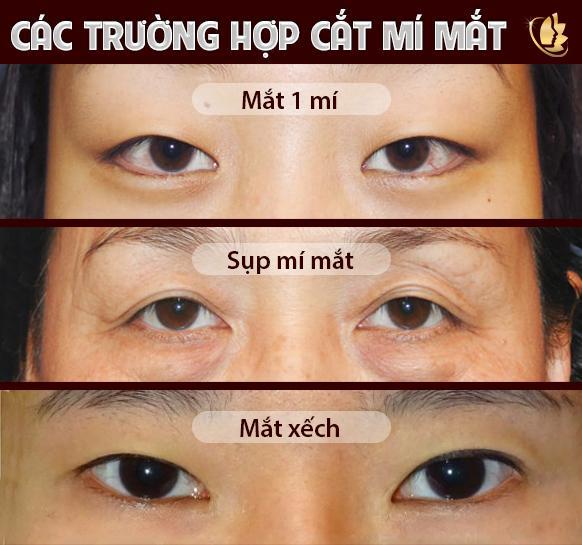 đối tượng cắt mí mắt plasma